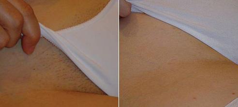 Beautex Bikinizone Haarentfernung